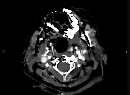 Hyperacute Arterial Stroke Image