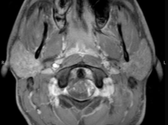 Sinonasal Complex Infections Image