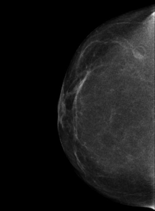 Interpretation of Screening Mammogrpahy